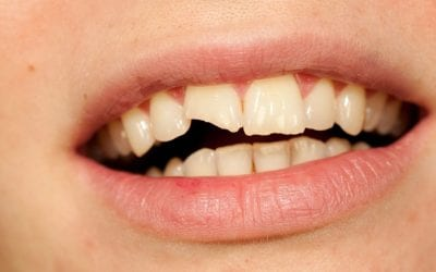 Dental Erosion Nearly Ruined My Smile