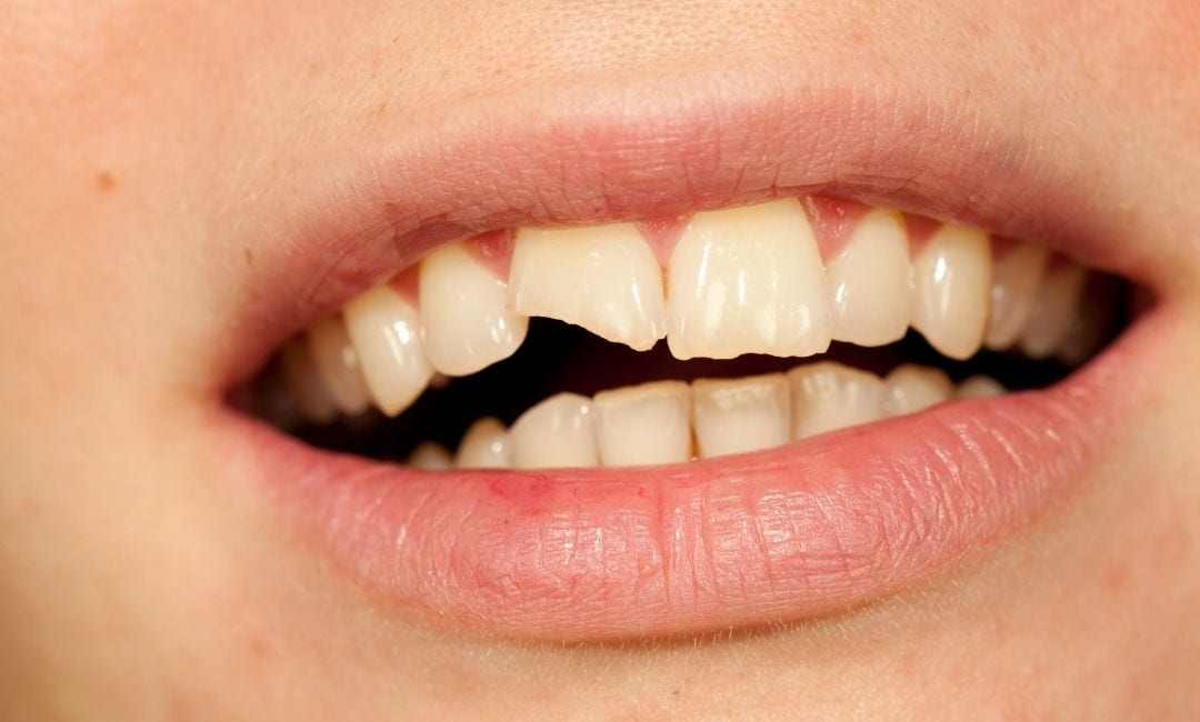 Person with broken front tooth due to dental erosion