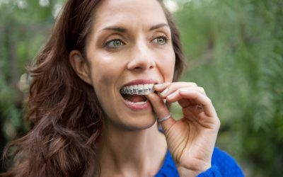 What is Invisalign and How Can It Straighten My Smile?